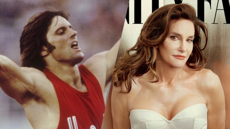 Nearly two years after publicly announcing her transition from male to female, Caitlyn Jenner has undergone sex reassignment surgery and tells the world ...